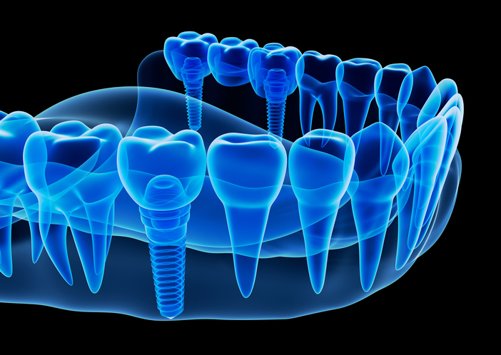 Multiple Implants at The Elmwood Dental Group LLC, West Hartford, CT